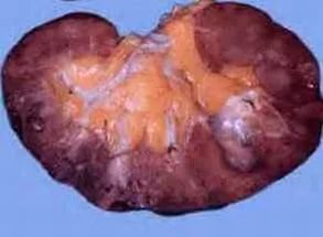 Цистит у женщин симптомы лечение. Чем лечить цистит