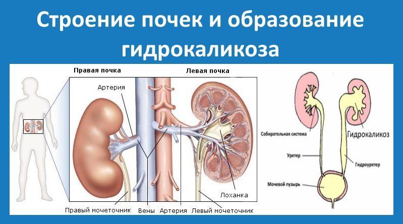 схема заболевания ЧЛС